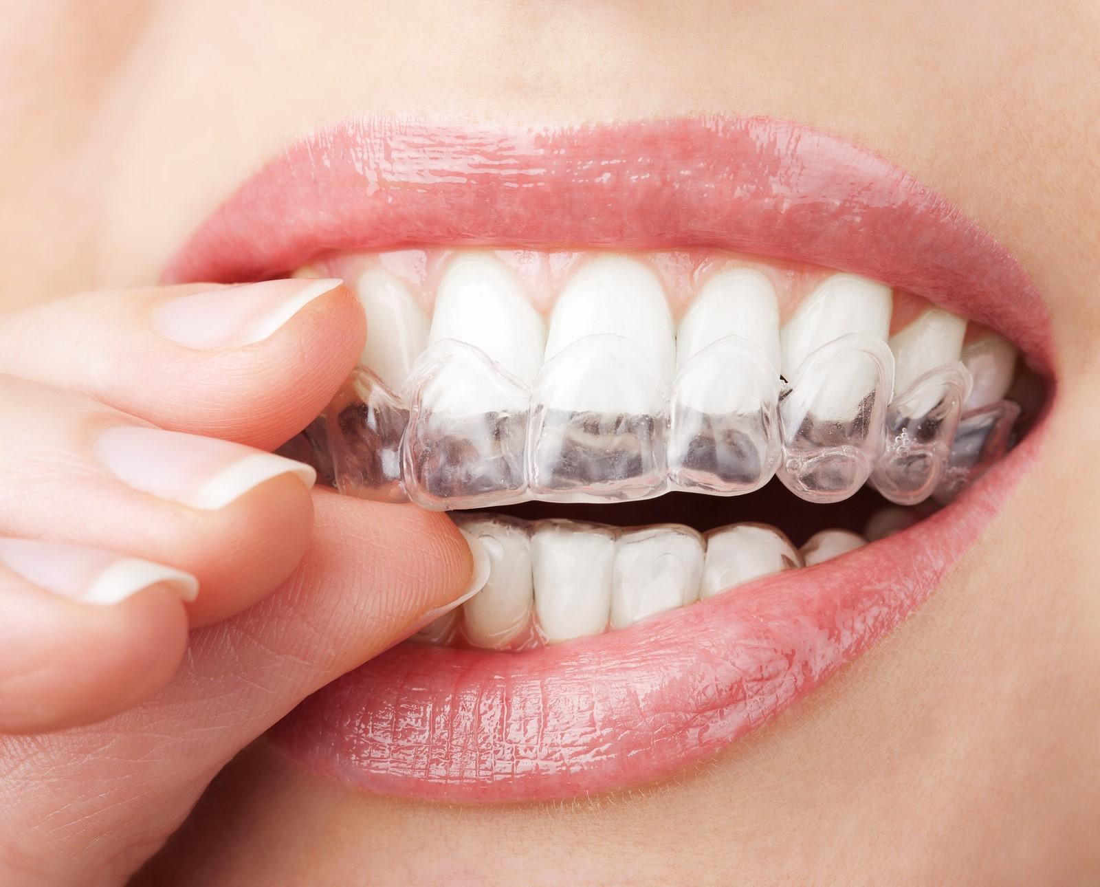 Treating Malocclusion through Atlanta Cosmetic Dentistry Procedures