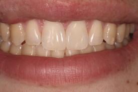 Buckhead Dentist Bonding